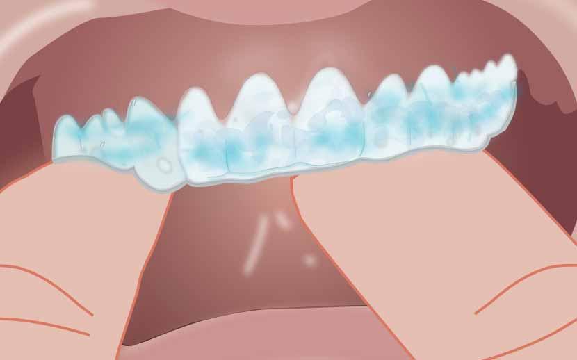 Opalescence PF procedure step 2