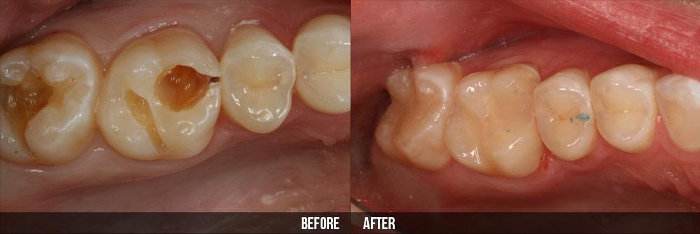 Quy trình bọc răng hàm ĐẢM BẢO không gây đau nhức