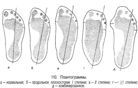 Плантонограмма при плоскостопии