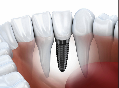 Dental Implants – Replacing Your Natural Teeth With Permanent New Ones