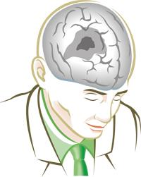 Semax in the stroke treatment