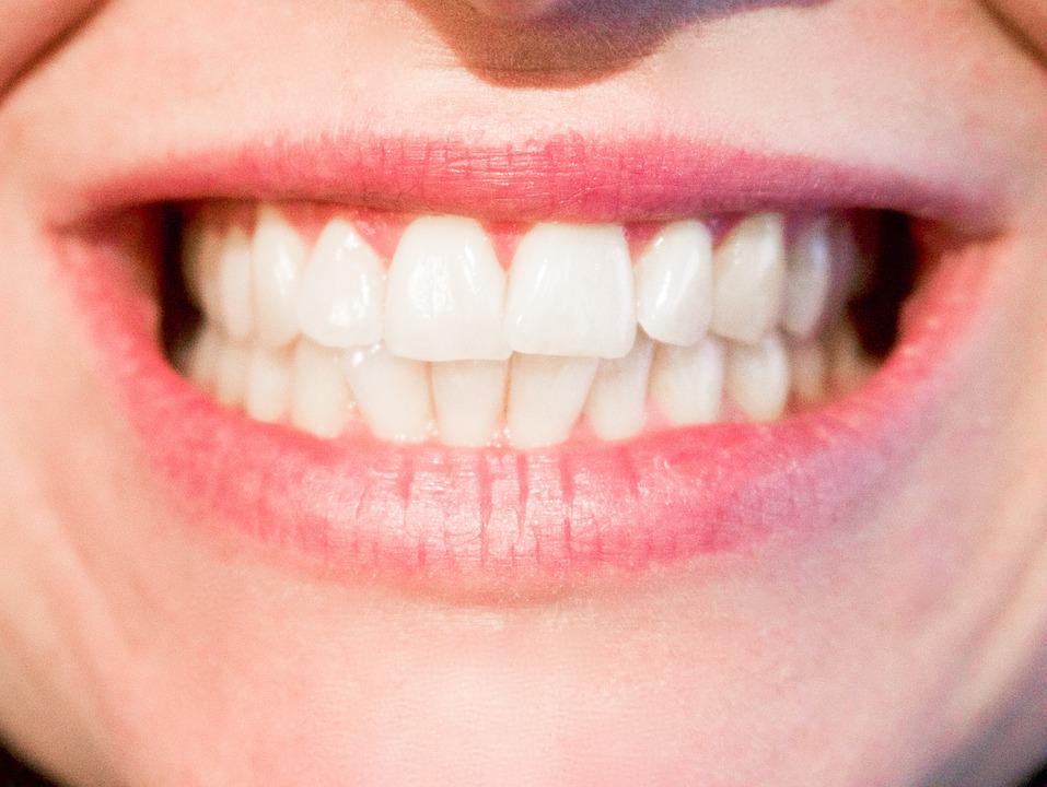 teeth-1652976_960_720.jpg