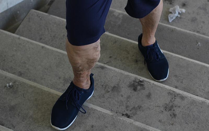 Varicose Veins: It's a Guy Thing - The New Jersey Vein & Vascular Center