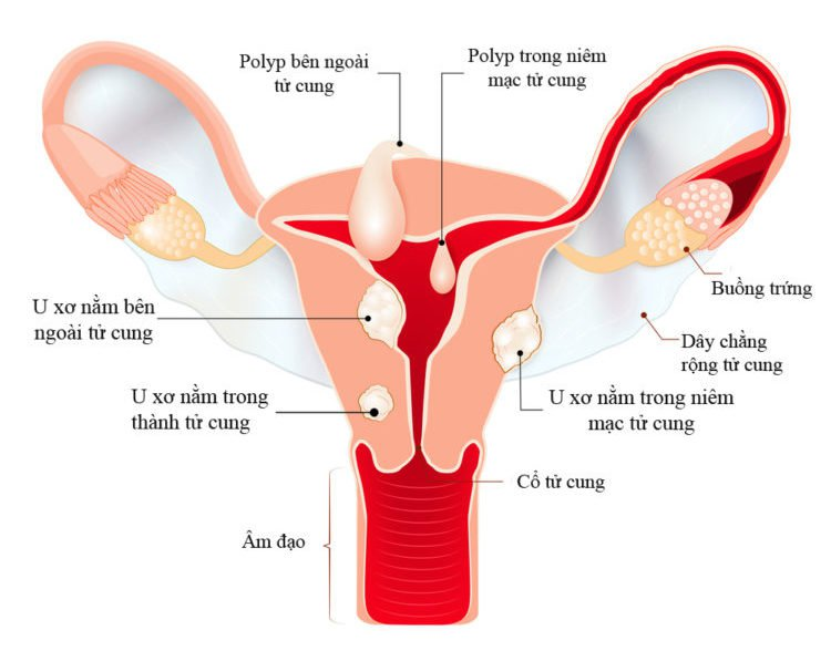 Hình ảnh u xơ tử cung