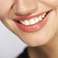 Teeth Whitening:  A Home or Away Game? post image
