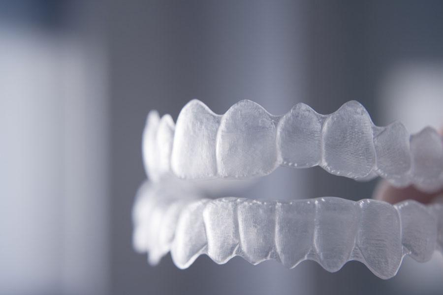 Diferenças entre o Invisalign e o Alinhador Nacional - VS Ortodontia