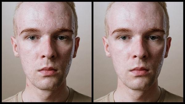 ante se depois da edição sendo que uma foto está com menos marcas de espinhas no rosto do que a outra