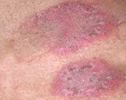 eczema skin Eczema Stimuli Raise the Irritation of the Skin