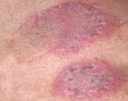 Eczema skin.