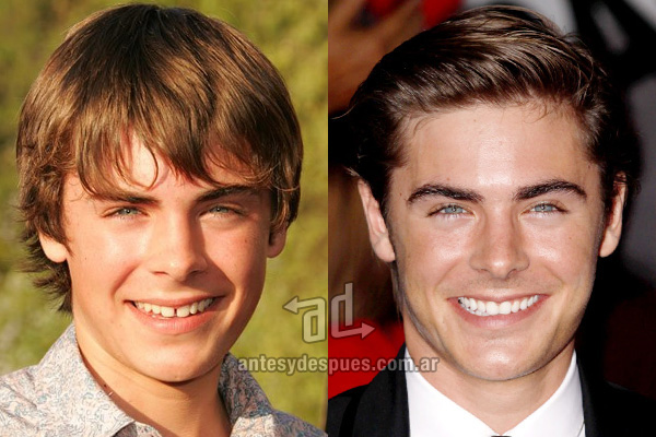The new smile of Zac Efron, afterdental surgery