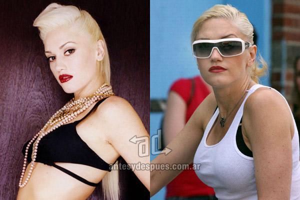 Los pechos operados de Gwen Stefani