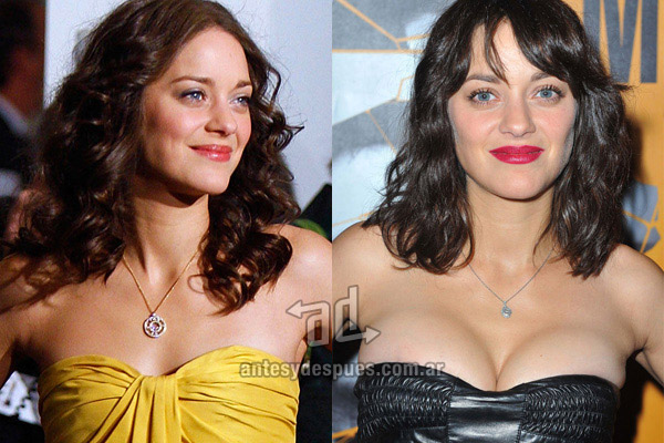 Marion Cotillard breast augmentation