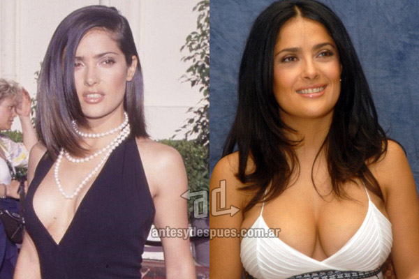 Salma Hayek breast augmentation