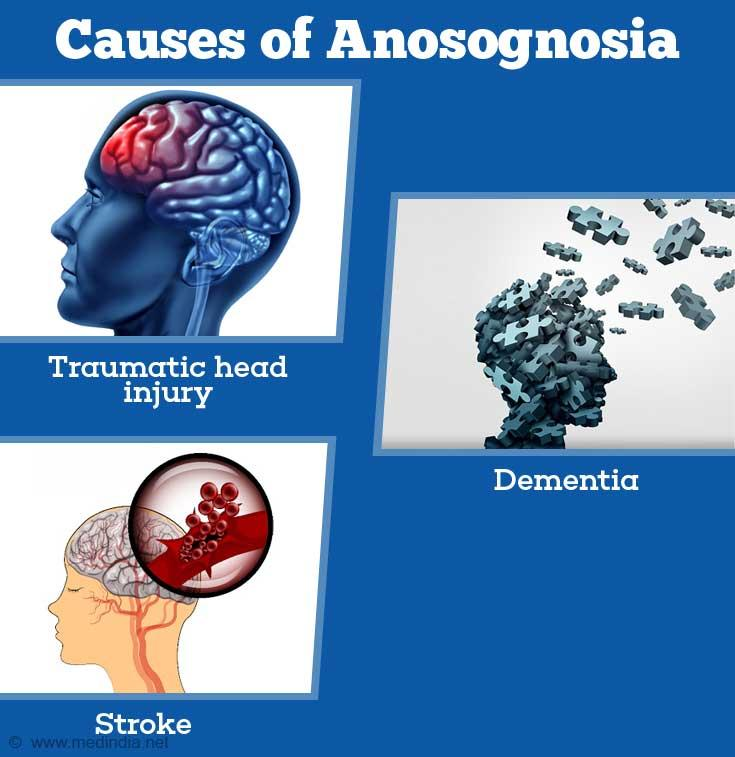 C:\Users\LENOVO\Pictures\causes-of-anosognosia.jpg