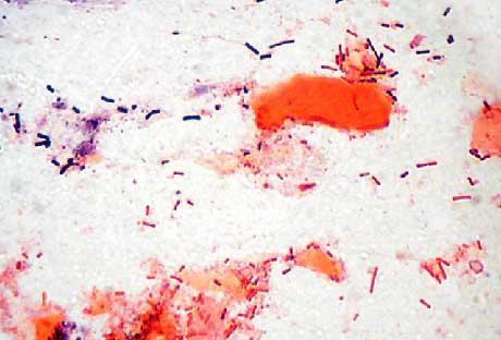 Psittacine: Iatrogenic gram-negative rods due to staining error