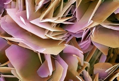 kristal%20batu%20ginjal Foto foto mikroskop elektron (1) : Sel dan jaringan makhluk hidup