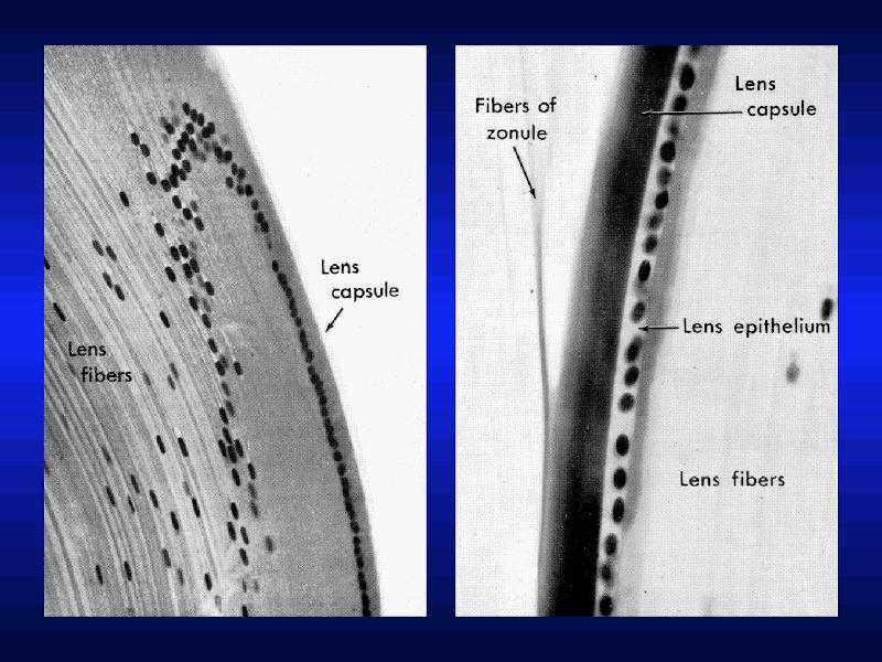 lens_cells.png