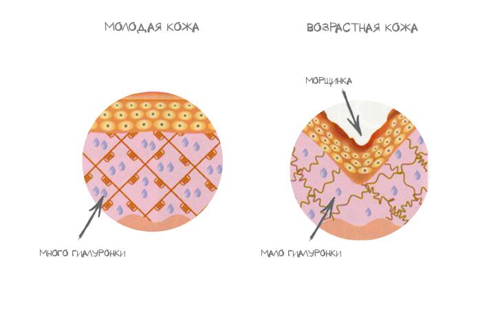 Гиалуроновая кислота в косметике: вред или польза?