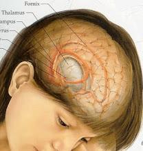 Pengobatan & Penyembuhan  Tumor Otak  Meningioma
