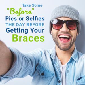 5 điều cần làm trong ngày trước khi niềng răng