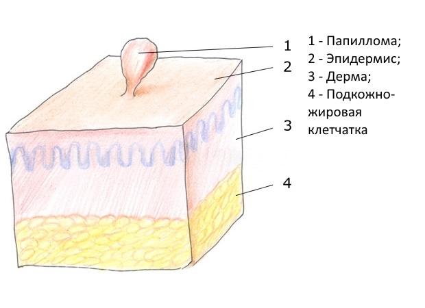 Папилломы под мышками причины