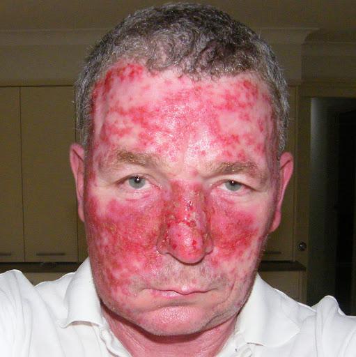 Imiquimod Side Effects Rash