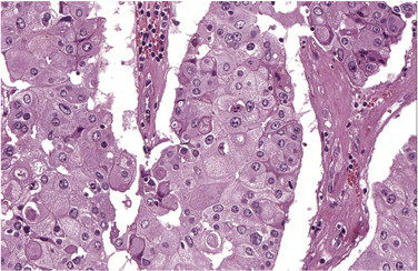 Image result for oncocytic carcinoma breast