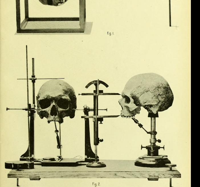 两个部分人的头骨的照片在测量设备的。