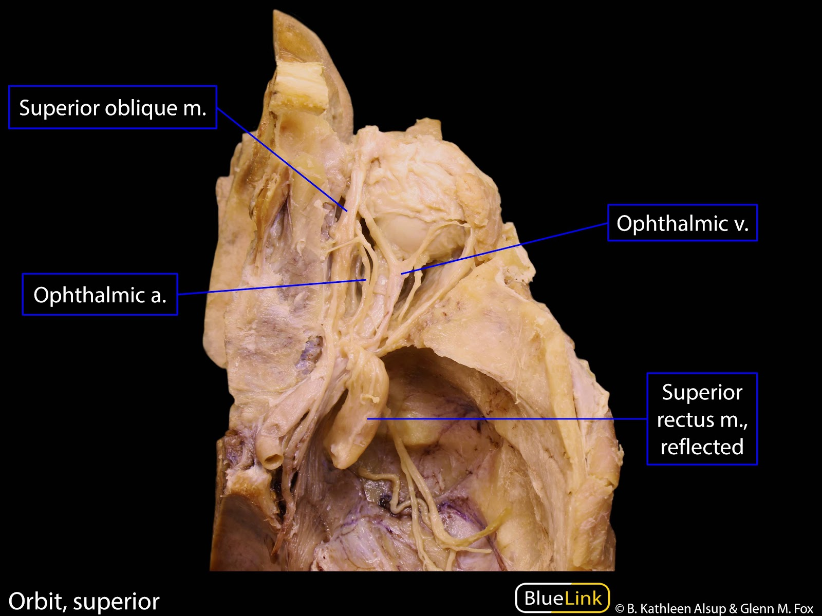 S10 Orbit and Cavernous Sinus - Learning Objectives - BlueLink