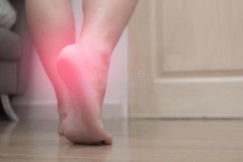 Schlots:Users:monikaschloder:Desktop:closeup-female-right-foot-heel-pain-red-spot-plantar-fasciitis-128115015.jpg
