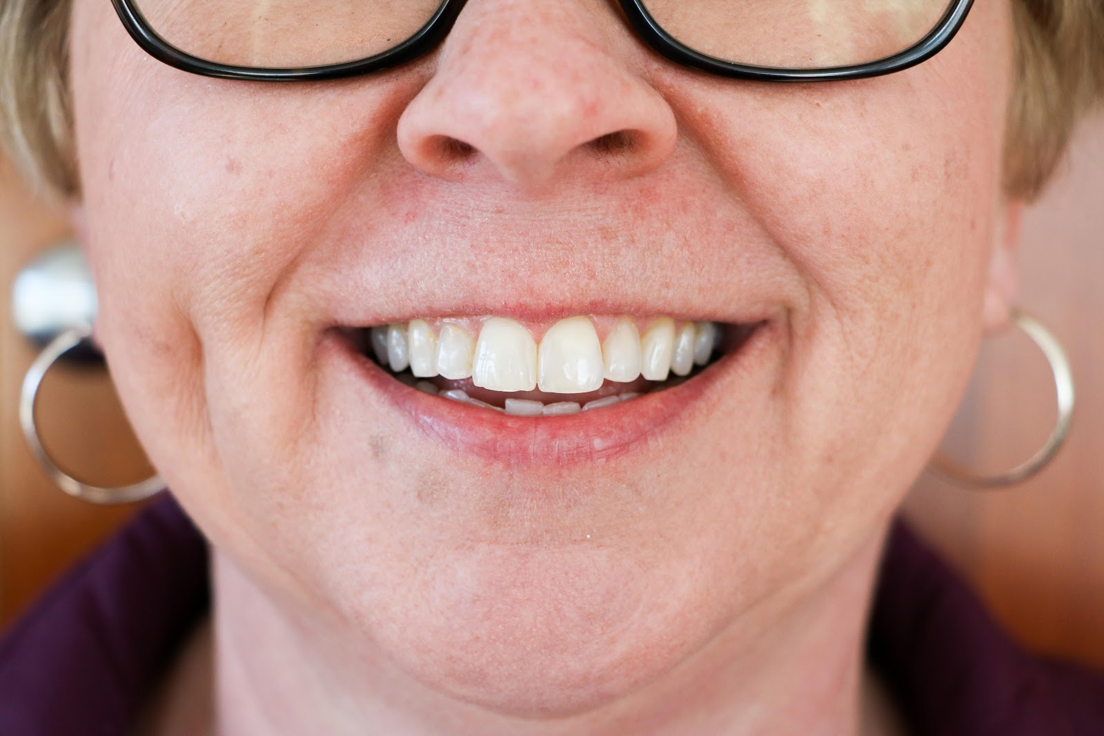 Stephanie's teeth after using Smile Brilliant