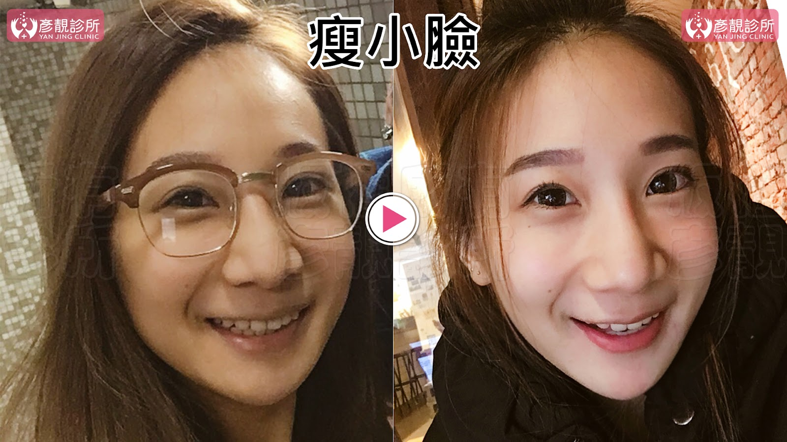 台北彥靚診所︱肉毒小臉擊敗咀嚼肌一個月變化全紀錄