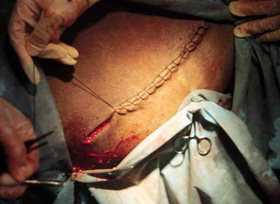 Cesarean section in the camel: Skin suture using an interlocking suture pattern.