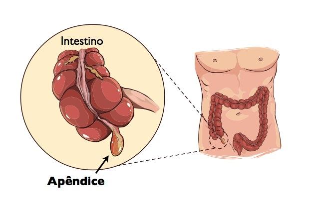 apêndice cecal