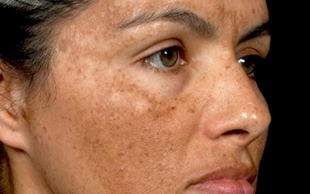 Những đốm nâu xuất hiện trên da là minh chứng rõ ràng nhất về sự hiện diện của nám