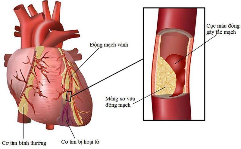 Kết quả hình ảnh cho bệnh mạch vành