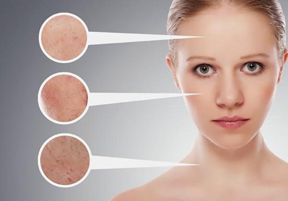 Vệ sinh da mặt không đúng cách cũng là nguyên nhân khiến da bạn bị nổi mụn