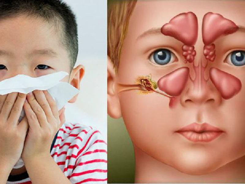 Trẻ sổ mũi hắt hơi do viêm xoang