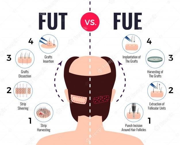 Methods of hair transplantation fut vs fue poster with infographic elements on white Free Vector