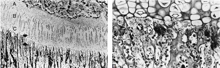 Histologic sections that demonstrate the mechanism of longitudinal growth as seen morphologically in the growth plate and the metaphysis