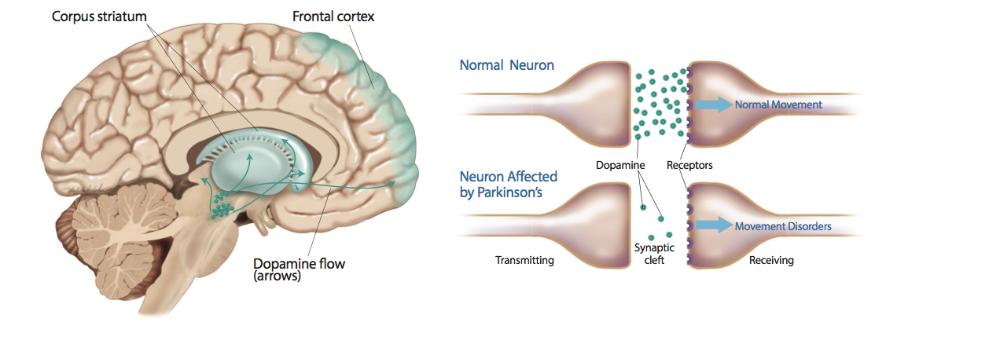 parkinsons-disease-stem-cell.jpg