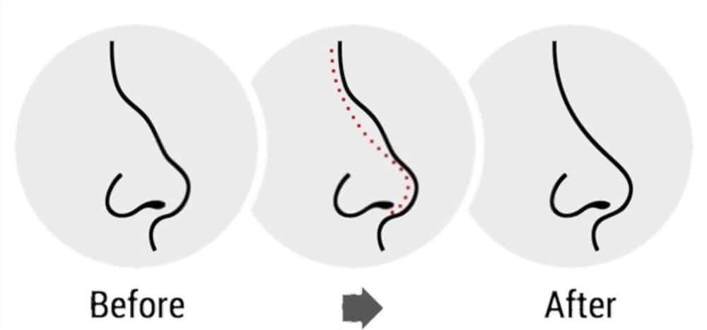 nose job - rhinoplasty
