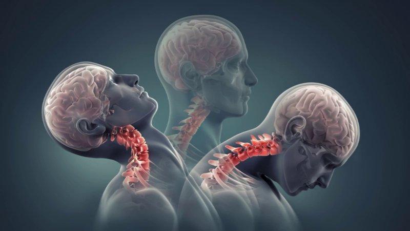Thoái hóa cột sống cổ gây suy giảm chất lượng cuộc sống nghiêm trọng