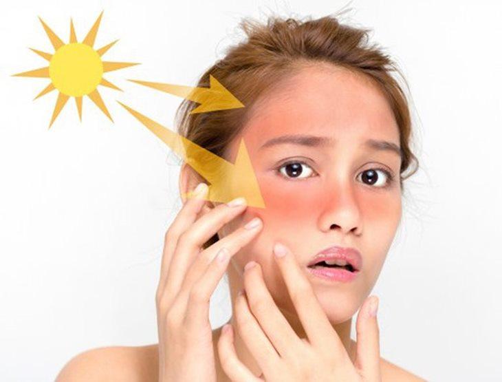 Da tiếp xúc với ánh nắng mặt trời nhiều có thể gây thâm, sạm, mụn