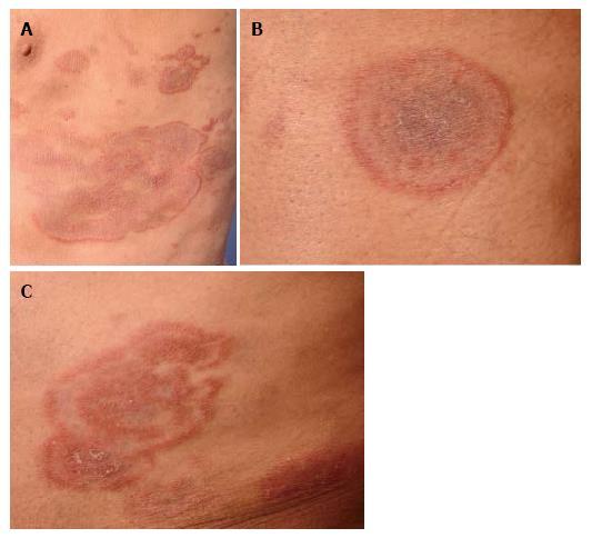 lesiones anulares, micosis fungoide