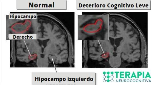 D:\Mis documentos\Trabajos agu\Trabajo con Jozami\Deterioro Cognitivo Leve\fotos\Disminucion del Hipocampo.jpg