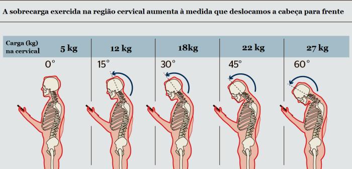 sobrecarga sobre o pescoço