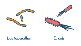 Negative urine cultures and E. coli