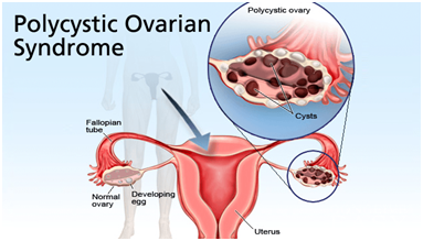 PCOS treatment and management Center in Hyderabad, best female fertility doctor near Banjara Hills
