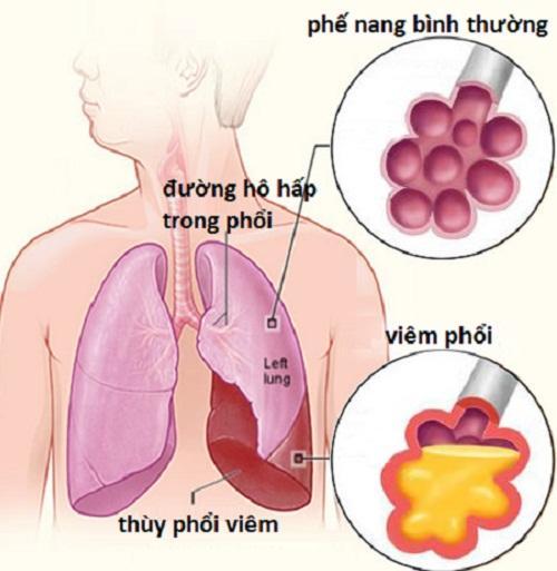Description: Kết quả hình ảnh cho phổi khi viêm